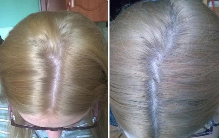 Применяем касторовое масло для волос - отзывы с фото до и после