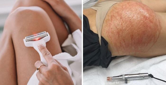 Как убрать растяжки на коже: микронидлинг